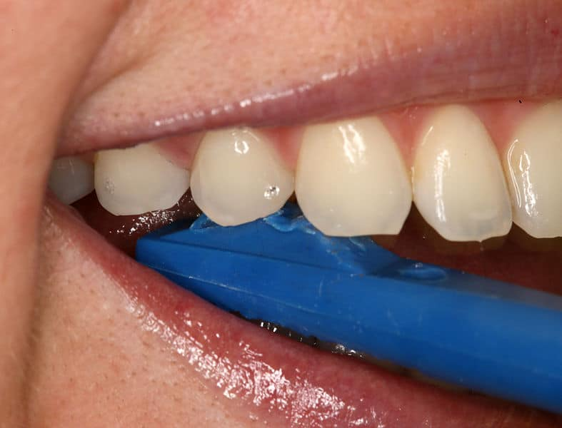 What Exactly Are Dental Sealants?