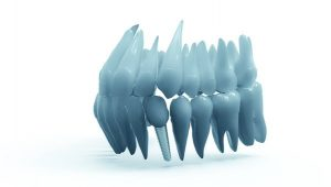 Shoreline dentist dental implant