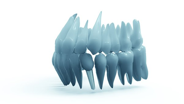 DIOnavi Dental Implants: What You Need to Know
