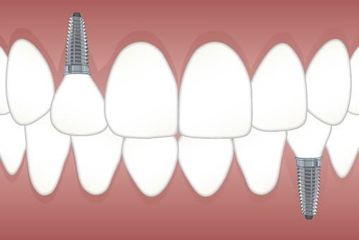Dental Implant Shoreline dentist